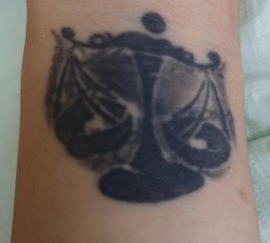 Tatuaż przedzabiegiem laserowego usuwania