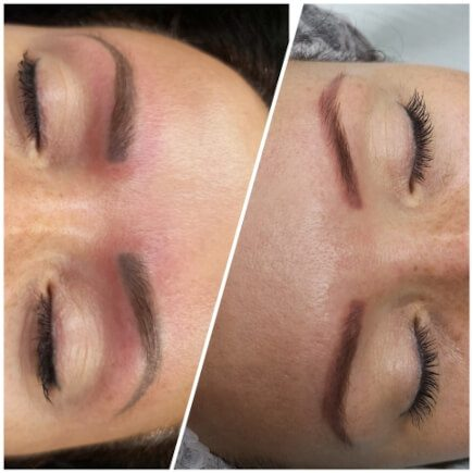 Zabiegi laserowe - usuwanie makijażu permanentnego brwi wsalonie Beauty Angel